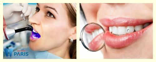 Bác sỹ trả lời: Đính đá vào răng có mấy cách thực hiện? 3