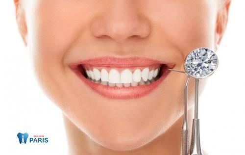 Bác sỹ trả lời: Đính đá vào răng có mấy cách thực hiện? 1