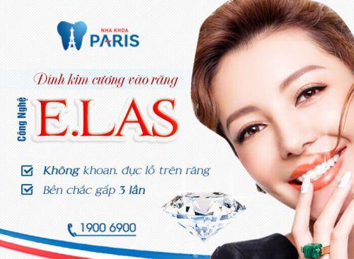 Giá đính đá ở răng CHUẨN NHẤT 2017 - Nha khoa Paris 3