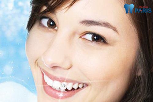 Chuyên gia giải đáp: Đính đá răng không khoan liệu CÓ BỀN? 1