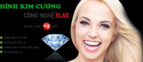 Đính kim cương vào răng ở đâu bền đẹp VĨNH VIỄN 3
