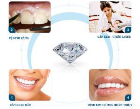 Đính kim cương vào răng ở đâu bền đẹp VĨNH VIỄN 5