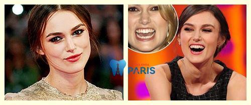 Điểm danh top 8 sao nổi tiếng thế giới nhưng có hàm răng xấu 4