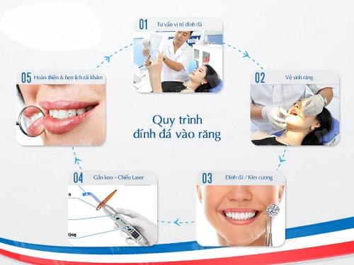 Chuyên gia chia sẻ: Quy trình đính đá vào răng như thế nào? 2