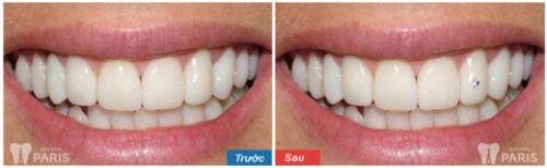 Quy trình đính đá vào răng như thế nào, thực hiện ở đâu thì tốt? 4