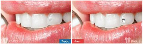"""""""5 Bước Tiêu Chuẩn"""" với quy trình đính đá lên răng tại Nha khoa Paris 2"""