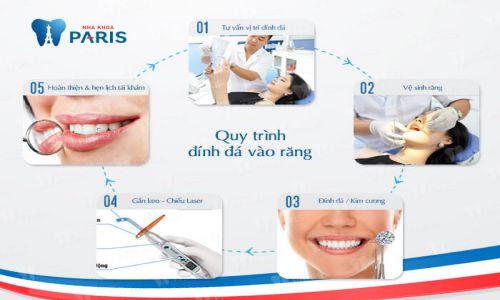 """""""5 Bước Tiêu Chuẩn"""" với quy trình đính đá lên răng tại Nha khoa Paris 11"""
