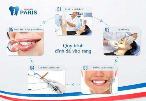 Đính kim cương vào răng cho nụ cười tỏa sáng với CN E.Las 5