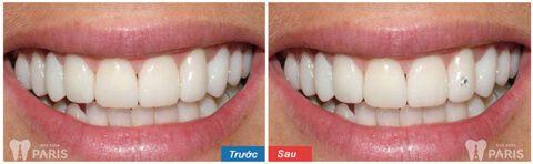 Đá đính răng mua ở đâu ĐẸP & Có Nguồn Gốc Xuất Xứ Rõ Ràng 3
