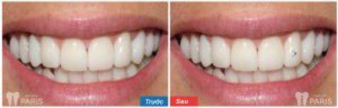 Chuyên gia tư vấn: Đâu là địa chỉ đính đá ở răng tốt nhất tại Hà Nội? 1