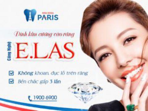 Chuyên gia tư vấn: Đâu là địa chỉ đính đá ở răng tốt nhất tại Hà Nội? 3