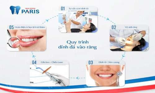 răng đẹp hàn quốc với công nghệ đính đá E.las 3
