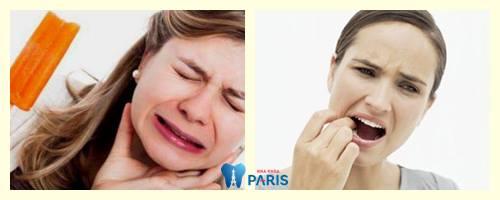 tác hại của đính đá vào răng