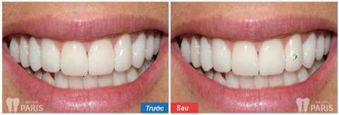 Tác hại của việc đính đá vào răng 011