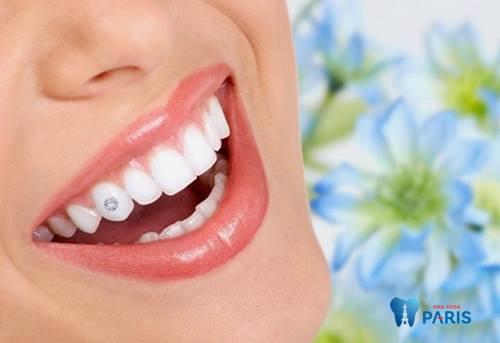 Răng đẹp miệng xinh chuẩn sao hàn nhờ công nghệ đính đá 5