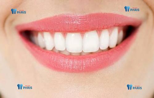 Răng đẹp miệng xinh chuẩn sao hàn nhờ công nghệ đính đá 1