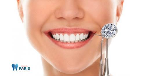 """Đính kim cương: Xu hướng làm đẹp răng """"hot"""" nhất hiện nay! 1"""