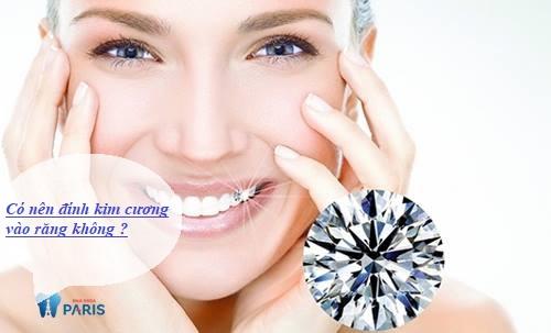 có nên đính kim cương vào răng không