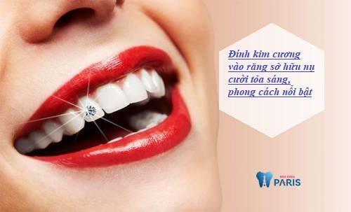 có nên đính kim cương vào răng không 12