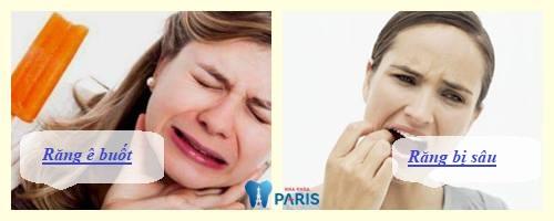 ĐẶC BIỆT LƯU Ý: 3 Tác hại của đính đá vào răng bằng kỹ thuật cũ 1