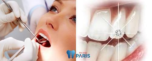 Đính đá vào răng khểnh bên nào ĐẸP và PHÁ CÁCH nhất? 2