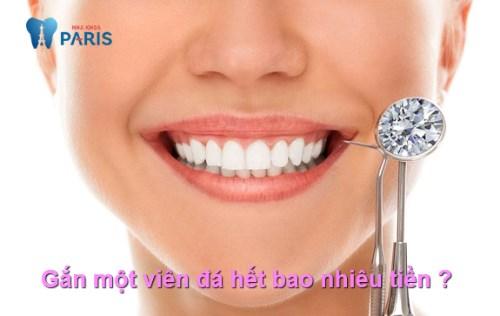 Giá một viên đá gắn vào răng hết khoảng bao nhiêu tiền | Paris dentistry 1