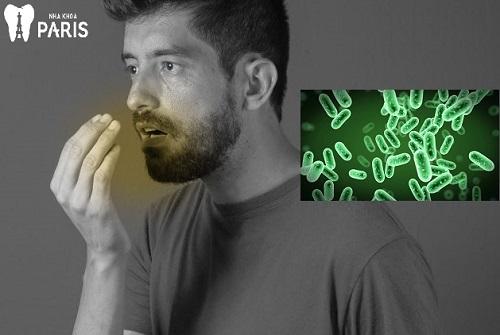 Hôi miệng ký sinh trùng – Nguồn gốc và một số hướng khắc phục 1
