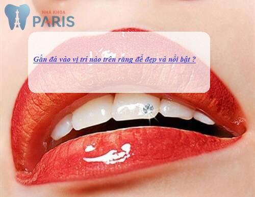 gắn đá vào vị trí nào trên răng để đẹp và nổi bật