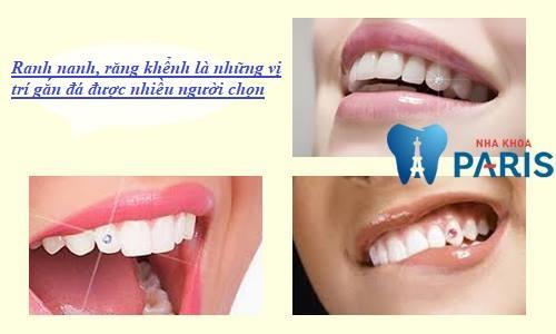 Gắn đá vào vị trí nào trên răng đẹp nhất hiện nay?