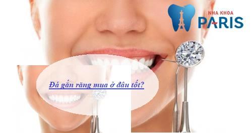 Đá đính răng mua ở đâu ĐẸP & Có Nguồn Gốc Xuất Xứ Rõ Ràng 1