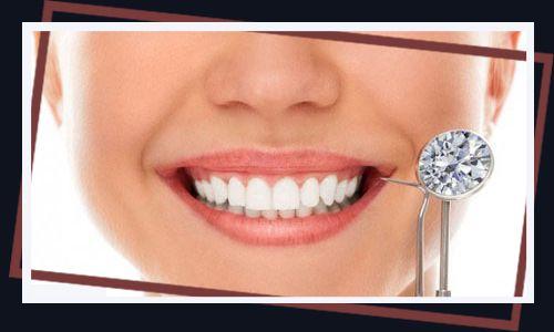 CÓ NÊN đính đá vào răng không? Kỹ thuật đính đá vào răng hiện nay.