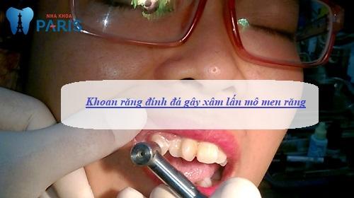 khoan răng đính đá