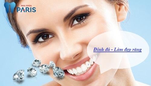 làm đẹp răng với công nghệ đính đa
