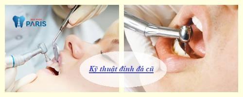 Đính đá vào răng có mấy cách thực hiện, cách nào hiệu quả Bền đẹp tốt? 2