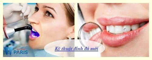Đính đá vào răng có mấy cách thực hiện, cách nào hiệu quả Bền đẹp tốt? 3