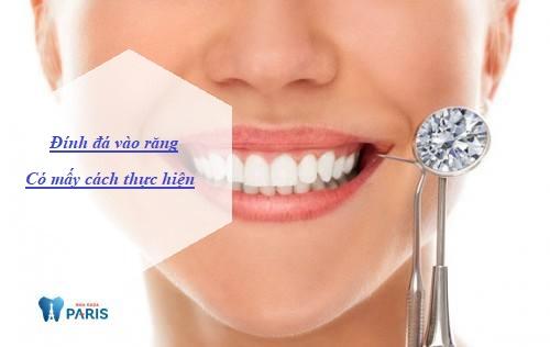 Đính đá vào răng có mấy cách thực hiện, cách nào hiệu quả Bền đẹp tốt? 1