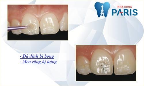 gắn đá vào răng có ảnh hưởng gì không? Nha khoa Paris