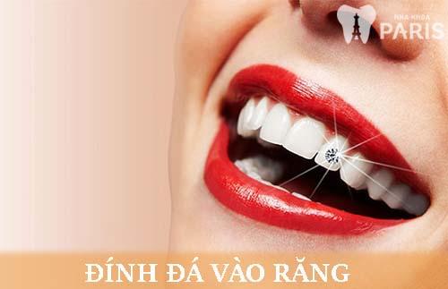Chỉ định: Đính kim cương vào răng bằng công nghệ E.Las