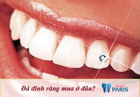 Đá đính răng mua ở đâu đảm bảo an toàn & đẹp là thắc mắc của nhiều người