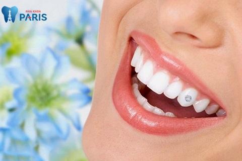 Đính đá vào răng giúp bạn sở hữu nụ cười tỏa sáng cũng như phong cách cá nhân nổi bật