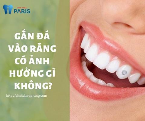 Gắn đá vào răng có ảnh hưởng gì không?