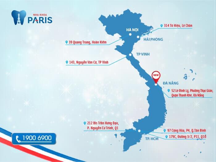 Mách bạn địa chỉ đính đá vào răng AN TOÀN, Uy Tín nhất Tại Việt Nam 1