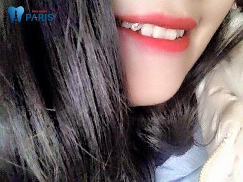 Đính đá răng khểnh 2 bên chi phí bao nhiêu là chuẩn nhất?
