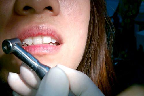 Có nên tháo đá đính răng tại nhà hay không? [Chia sẻ kiến thức] 4