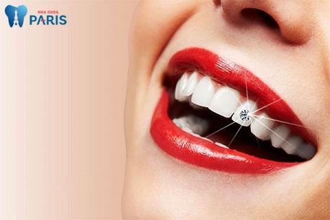 Đính đá vào răng có đắt không phụ thuộc vào tình trạng sức khỏe răng miệng của khách hàng